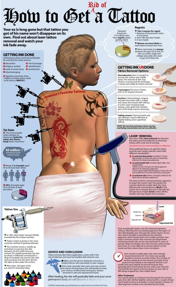 Infographic Showing Tattoo Removal