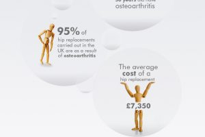 Osteoarthritis in the UK